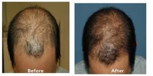 prp scalp